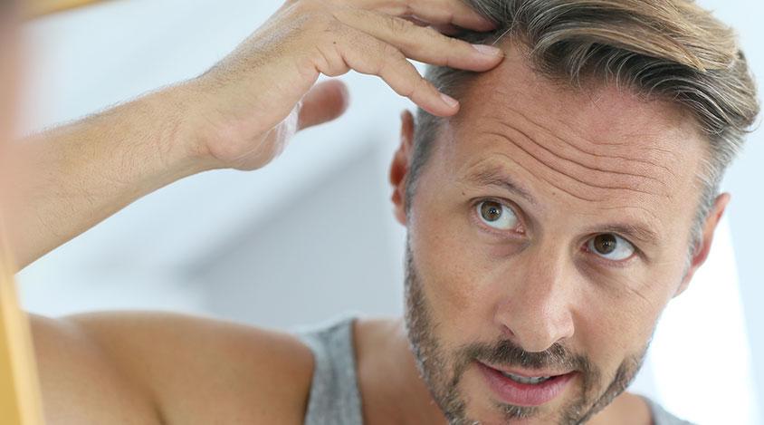 Metoder och priser vid hårtransplantation